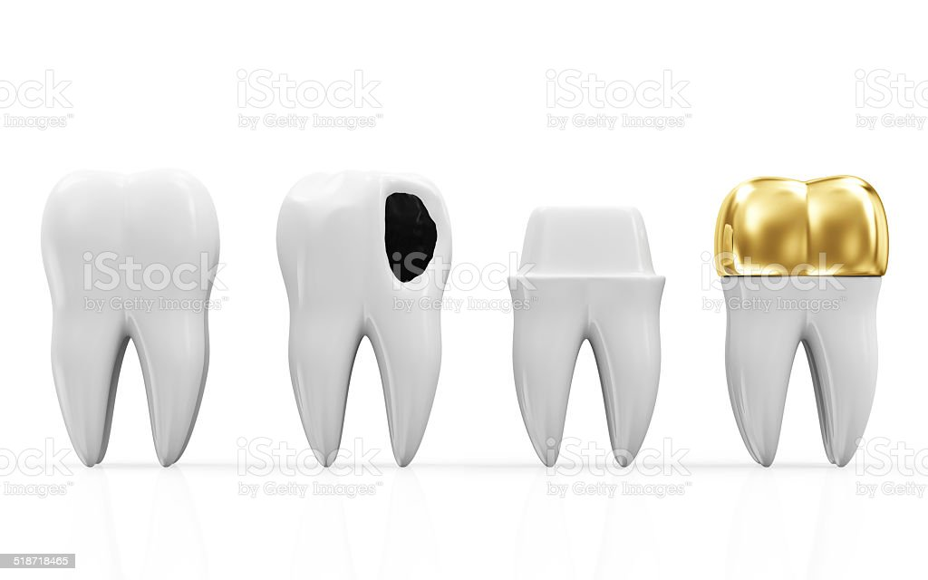 Helath Tooth, Teeth with Caries and Golden Dental Crown stock photo