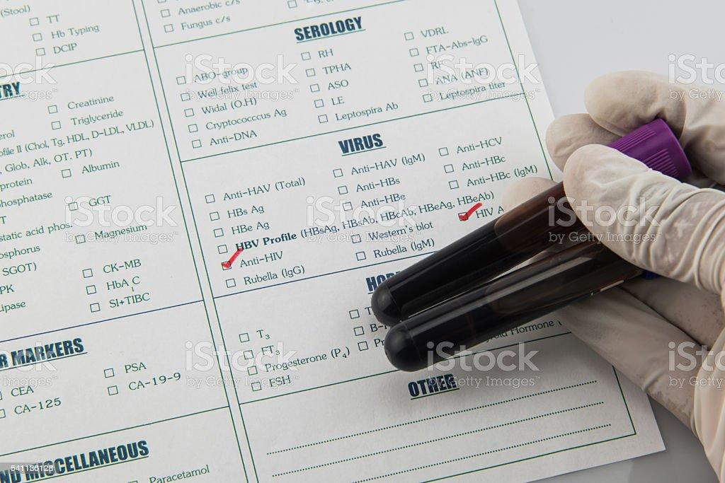 Hematology and immunology blood tube requisition stock photo