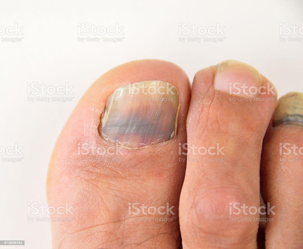hematoma in a nail stock photo