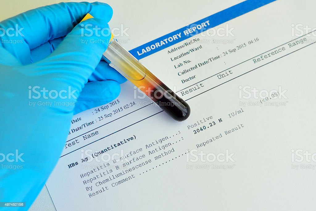Hepatitis B testing result stock photo
