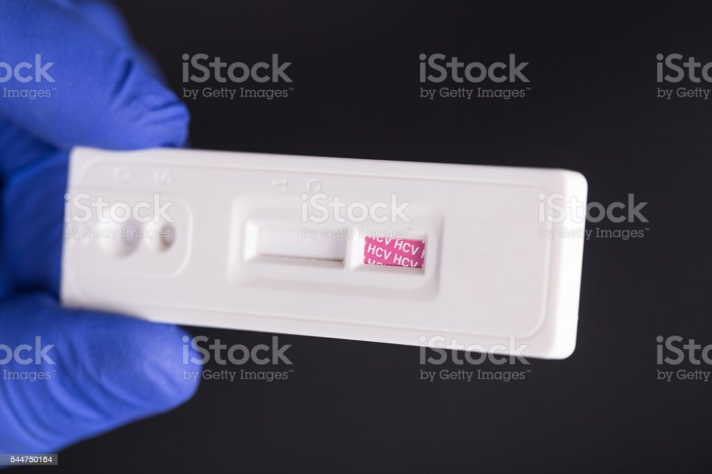 HCV Hepatitis C Virus Rapid Test Strip/ Device stock photo