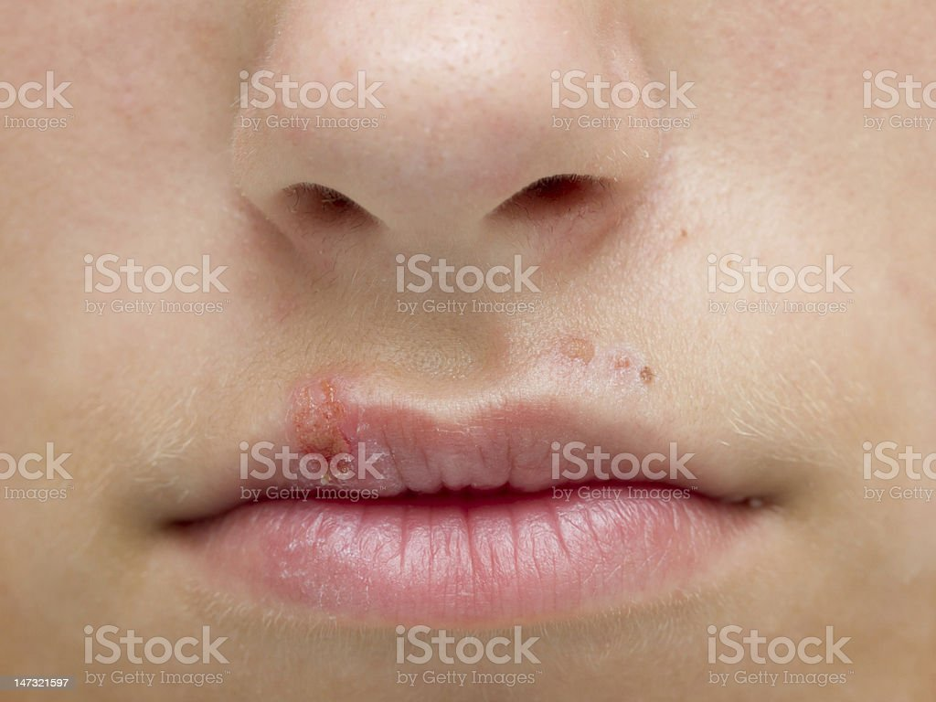 Herpes royalty-free stock photo