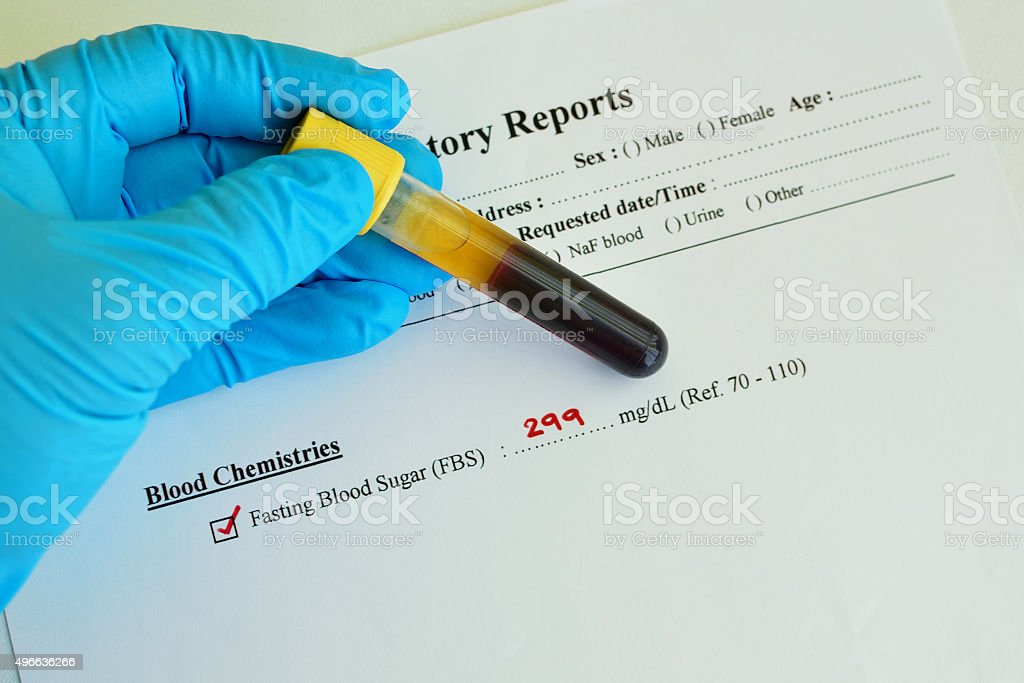 High blood sugar result stock photo