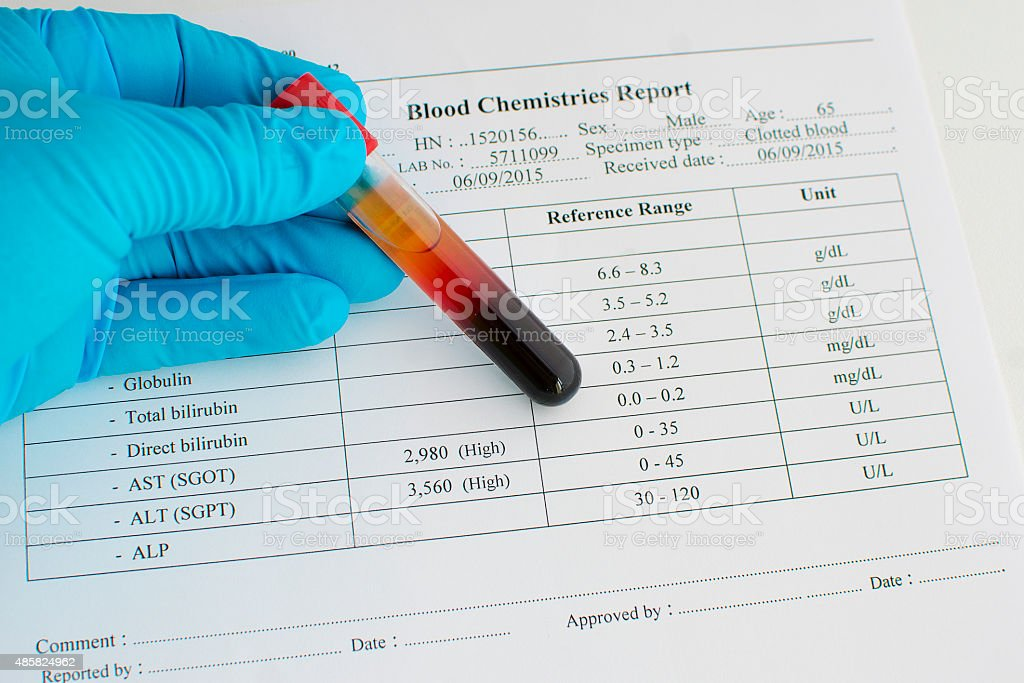 High liver enzyme result stock photo