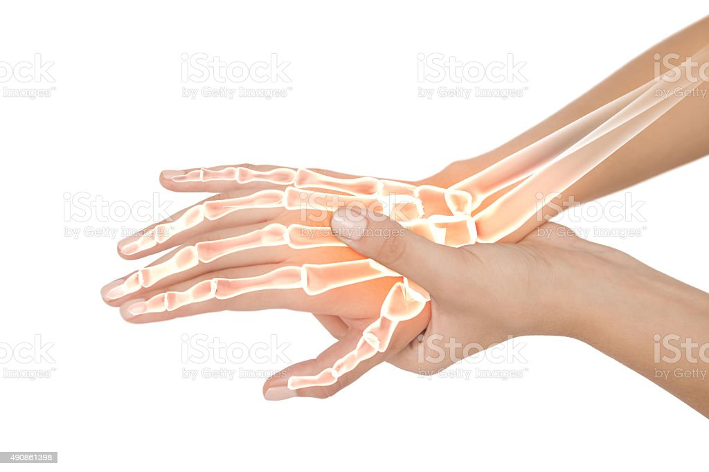 Highlighted bones of woman with hand pain stock photo