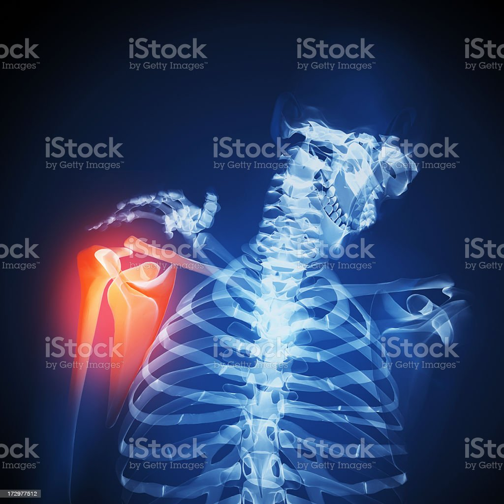 Highlighted orange area with image of skeleton touching it royalty-free stock photo