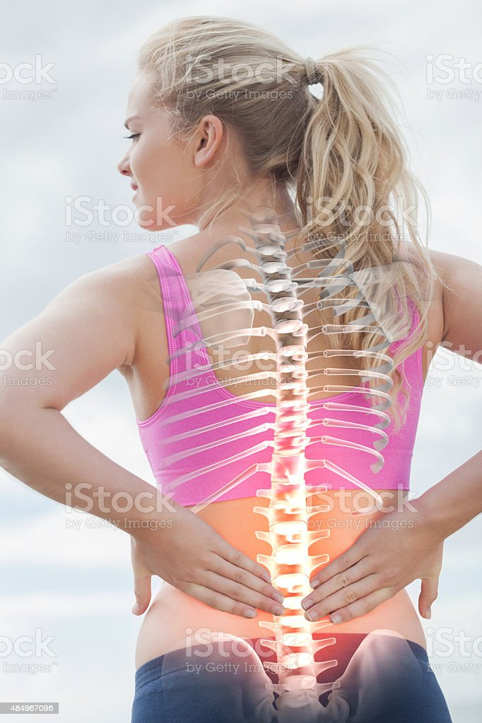 Highlighted spine of woman with back pain stock photo
