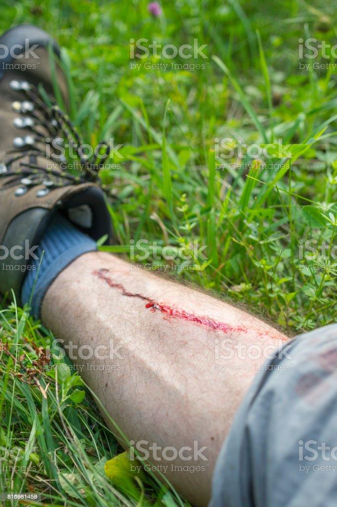 Hiking Leg Injury stock photo