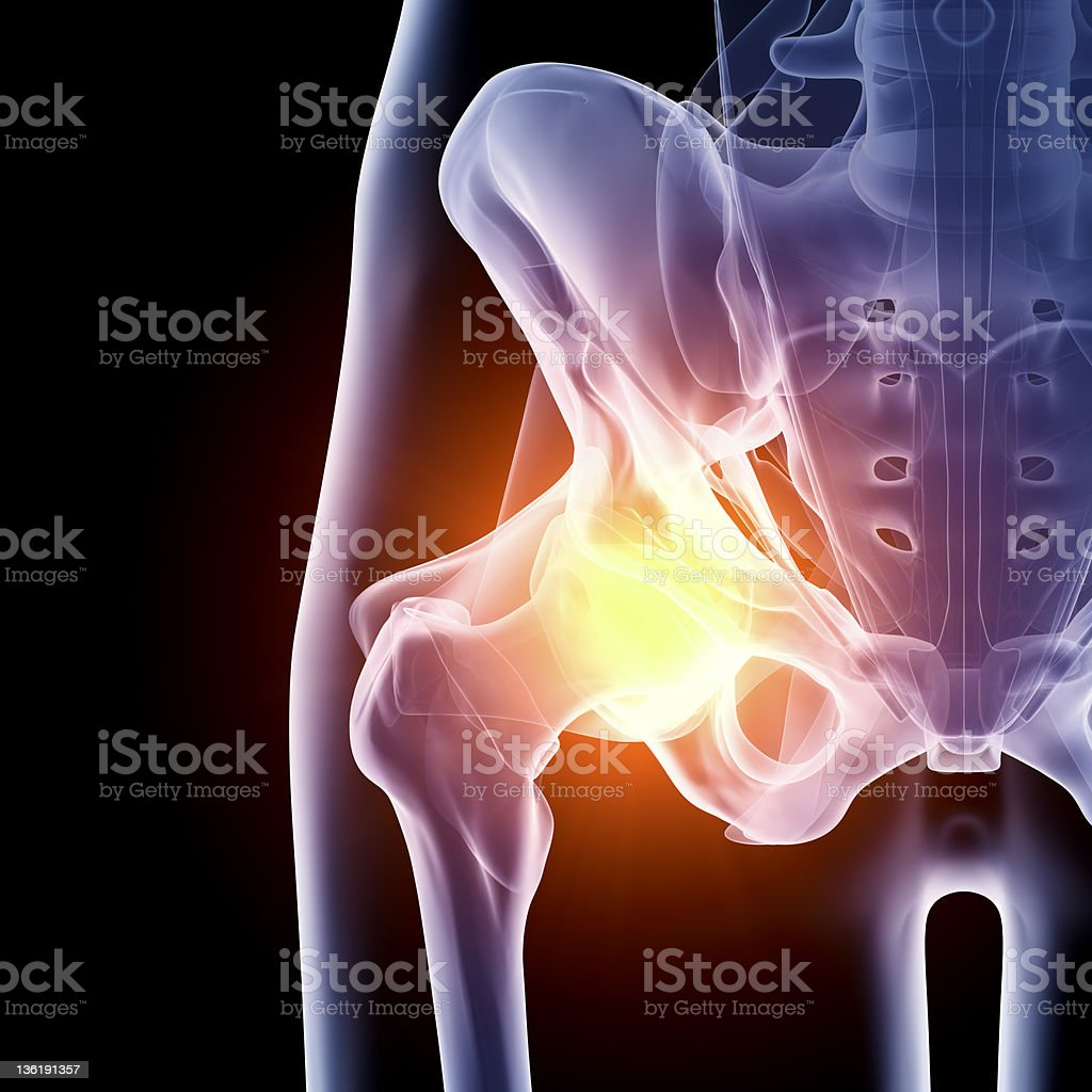 Hip in pain x-ray stock photo