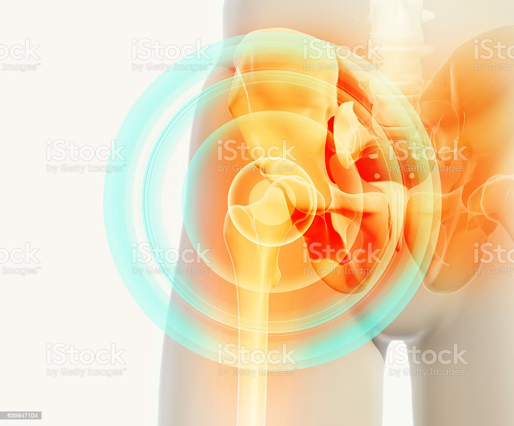 Hip painful skeleton x-ray, 3D illustration. stock photo