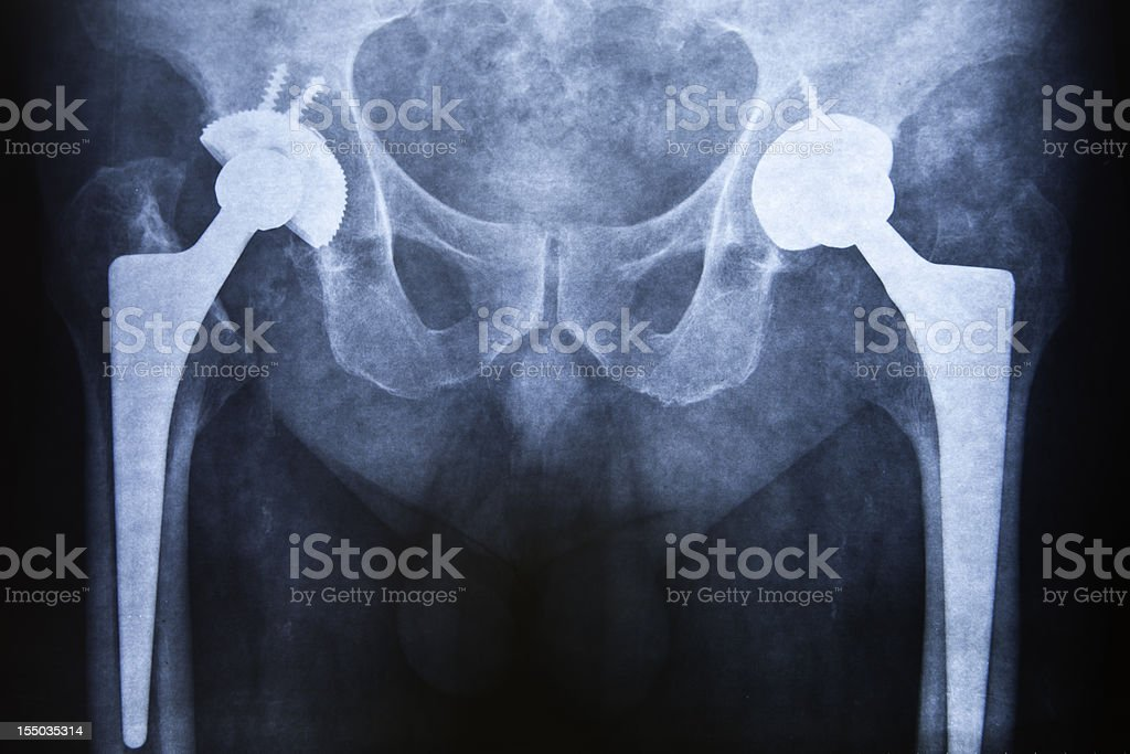 Hip replacement royalty-free stock photo