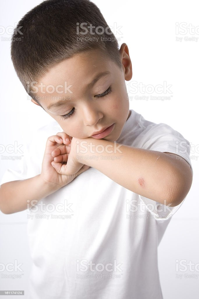 Hispanic Boy Inspects Wound on His Elbow royalty-free stock photo