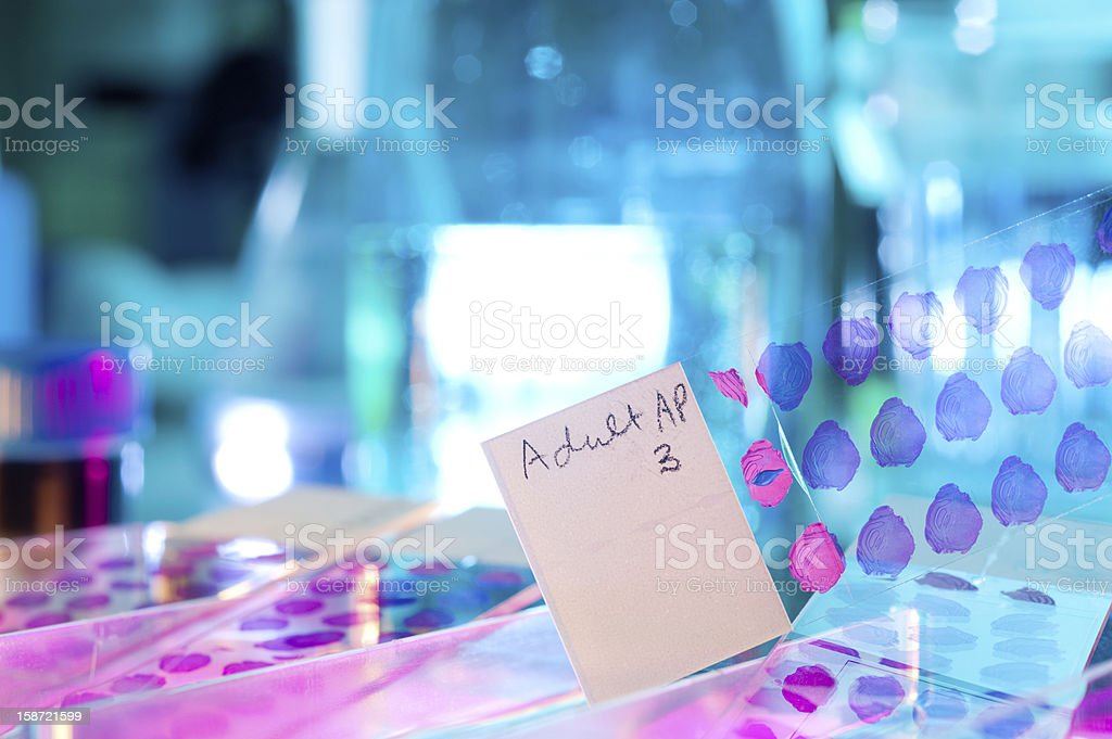 Histological sections processed for microscopy stock photo