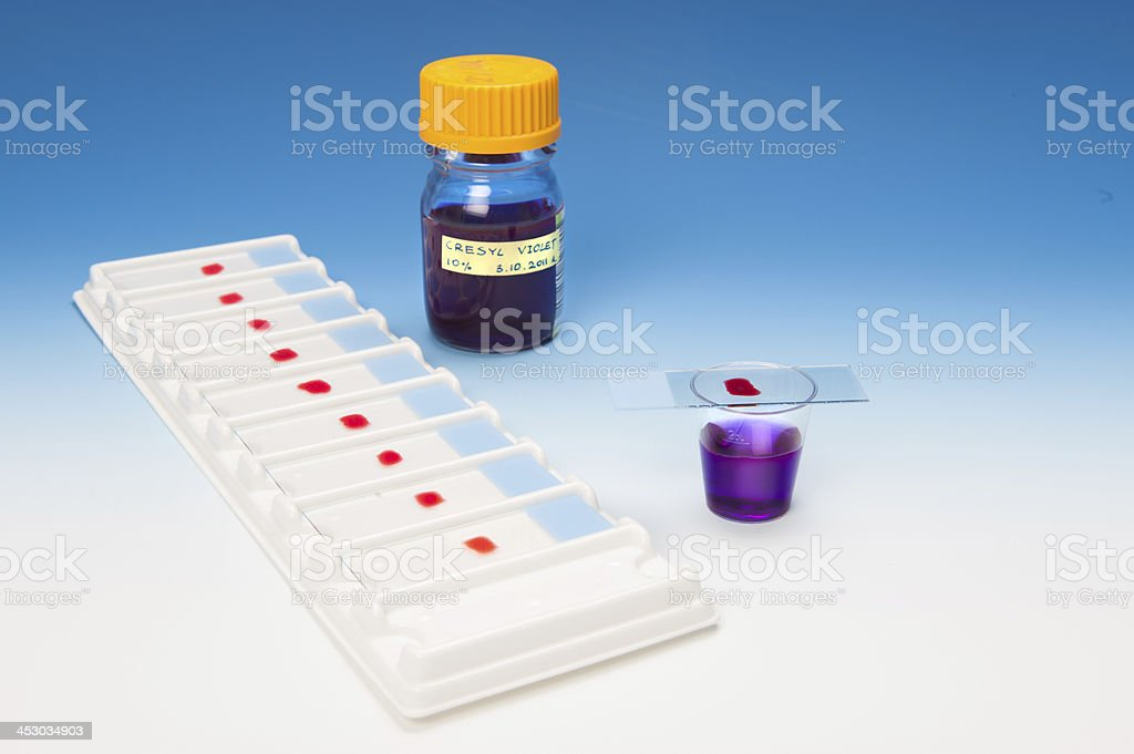 Histopathology dye and samples stock photo