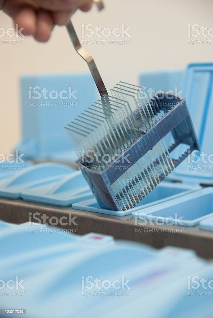 histopathology slide preparation stock photo