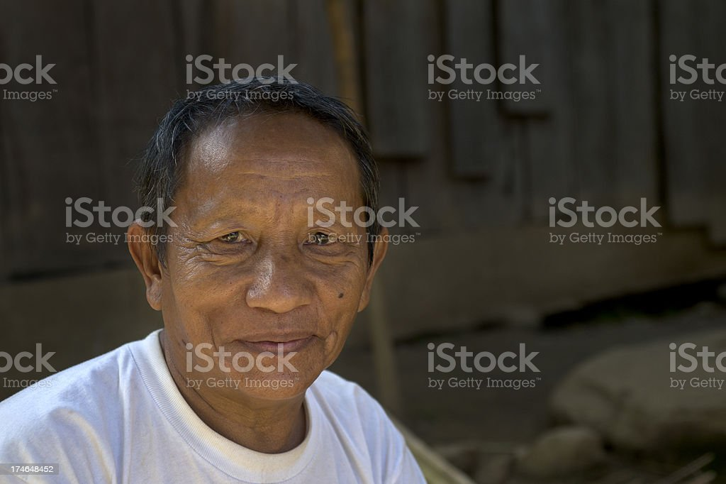 Hmong Amputee royalty-free stock photo