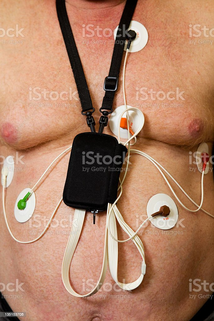 Holter monitor on patients chest stock photo