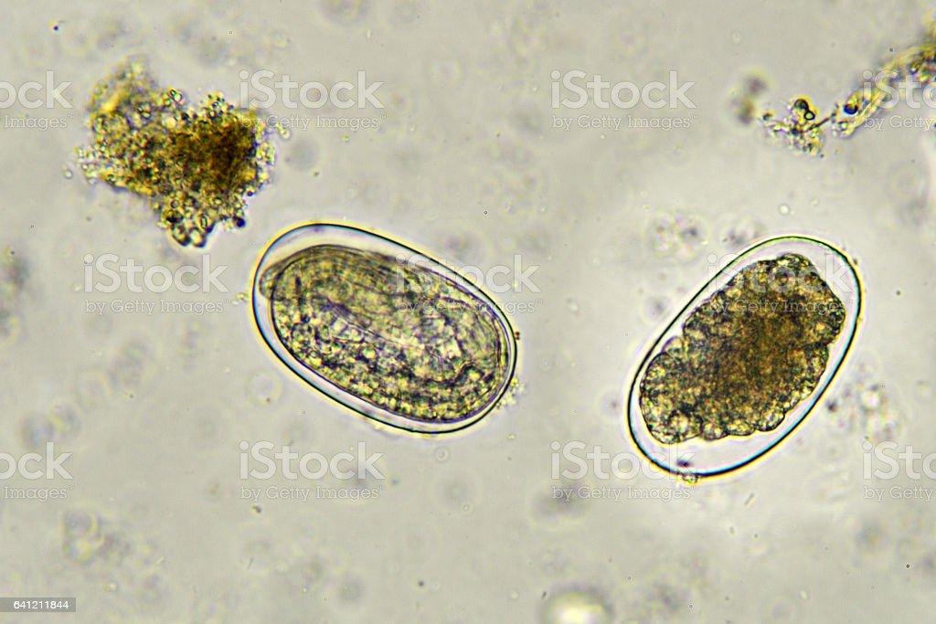 Hookworm (Eggs) stock photo
