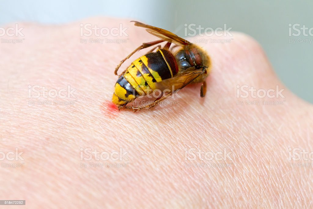 Hornet sting stock photo