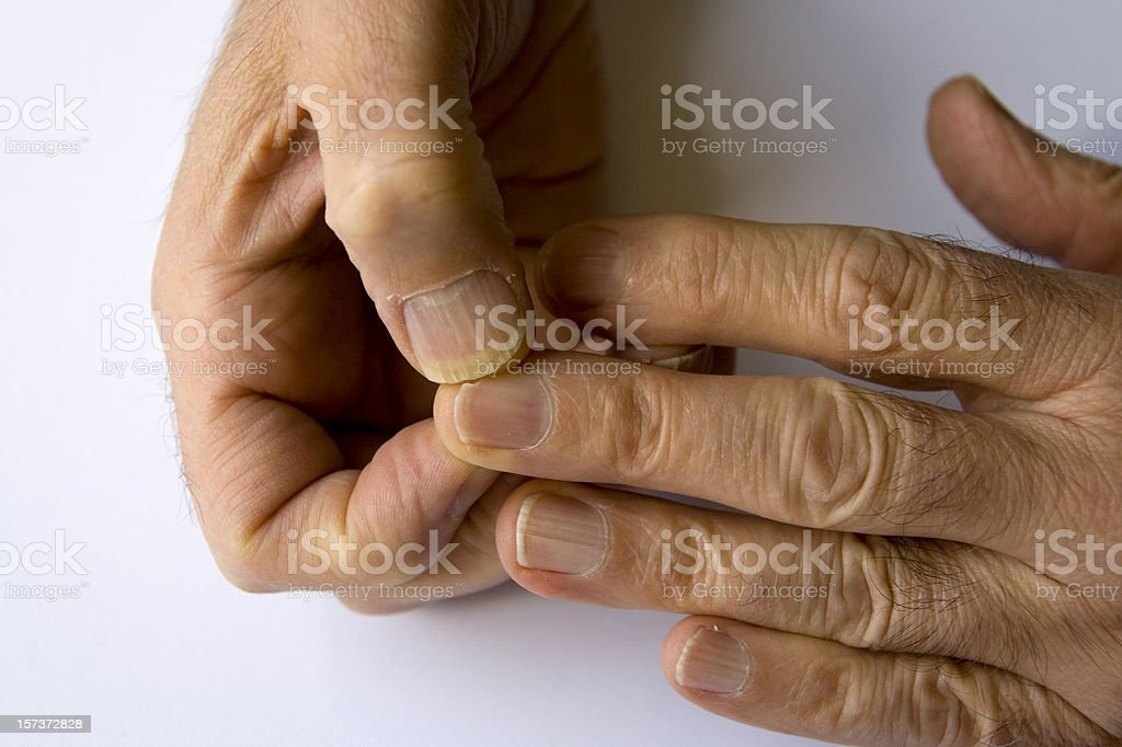 Horrible hands stock photo
