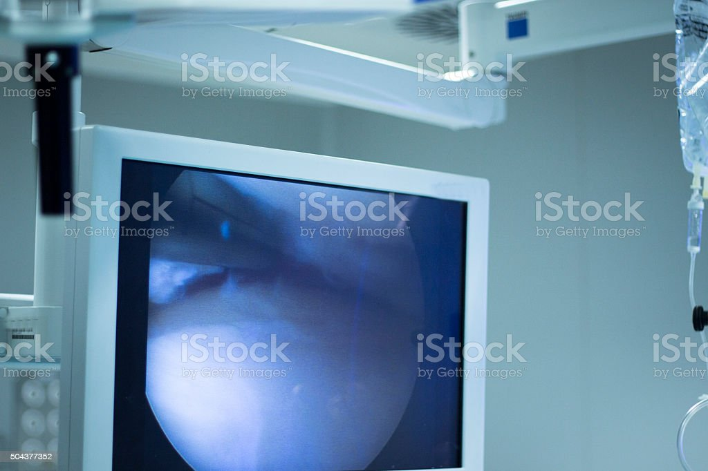 Hospital surgery arthroscopy operation screen stock photo
