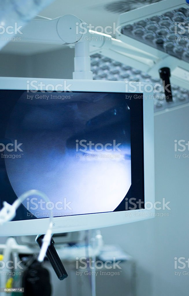 Hospital surgery arthroscopy operation screen stock photo