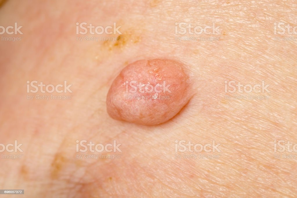 Huge wart on human skin stock photo
