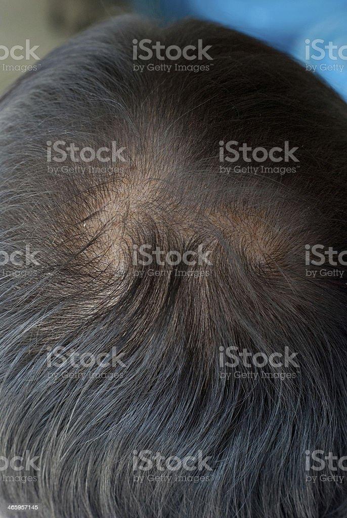 Human alopecia or hair loss - adult man bald head stock photo
