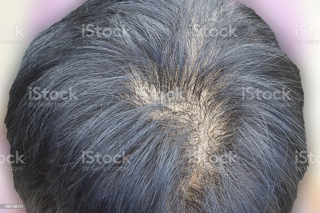 Human alopecia or hair loss problem and grizzly stock photo