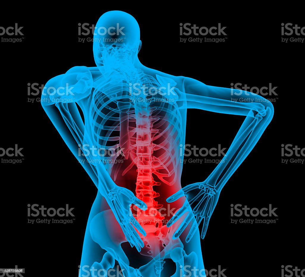 Human backbone in x-ray view Back Pain stock photo