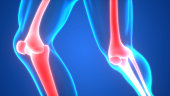 Human Body Bone Joint Pains (Knee Joint)