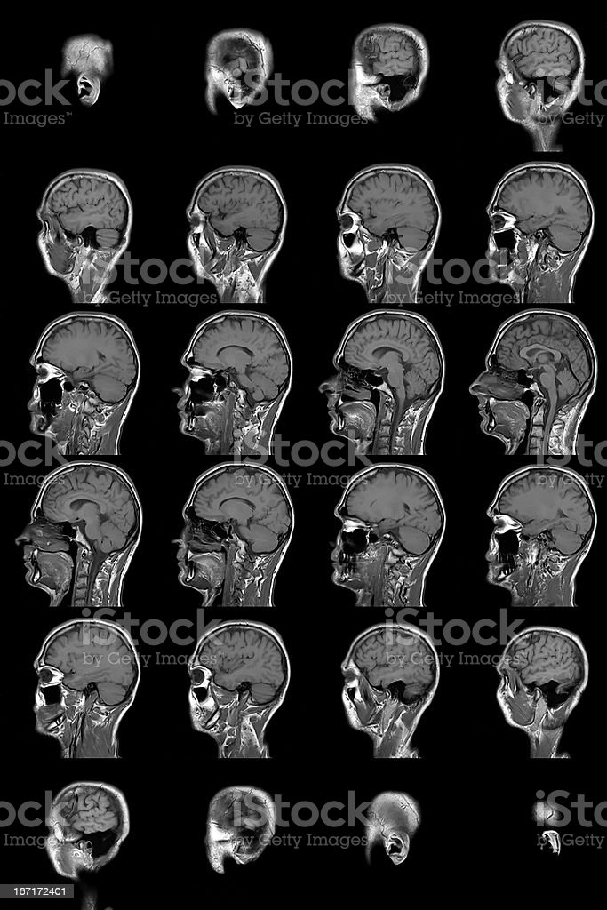 human brain mri royalty-free stock photo