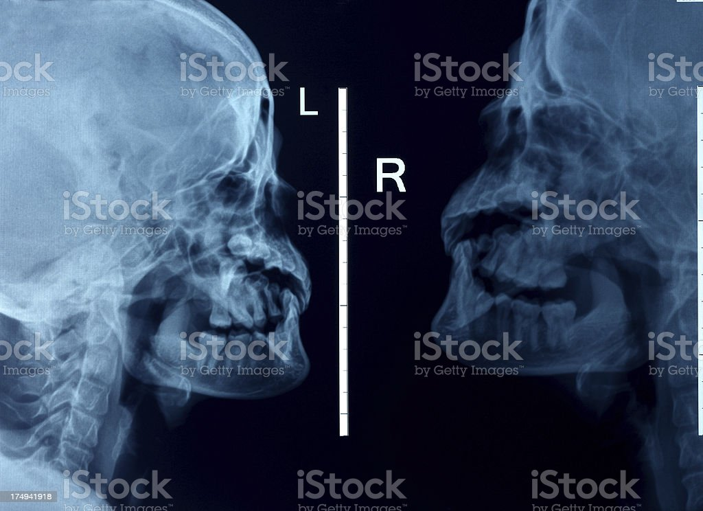 Human cervical spine xray stock photo