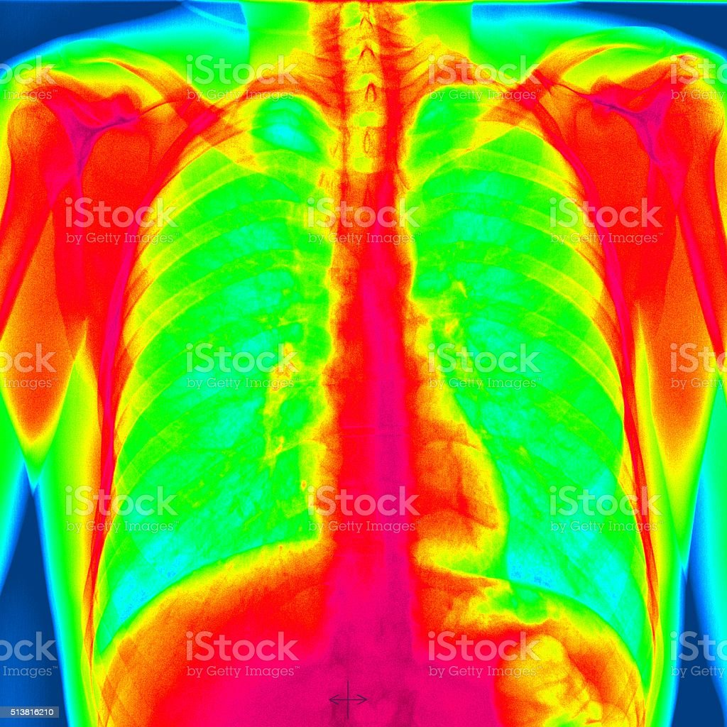 Human chest stock photo