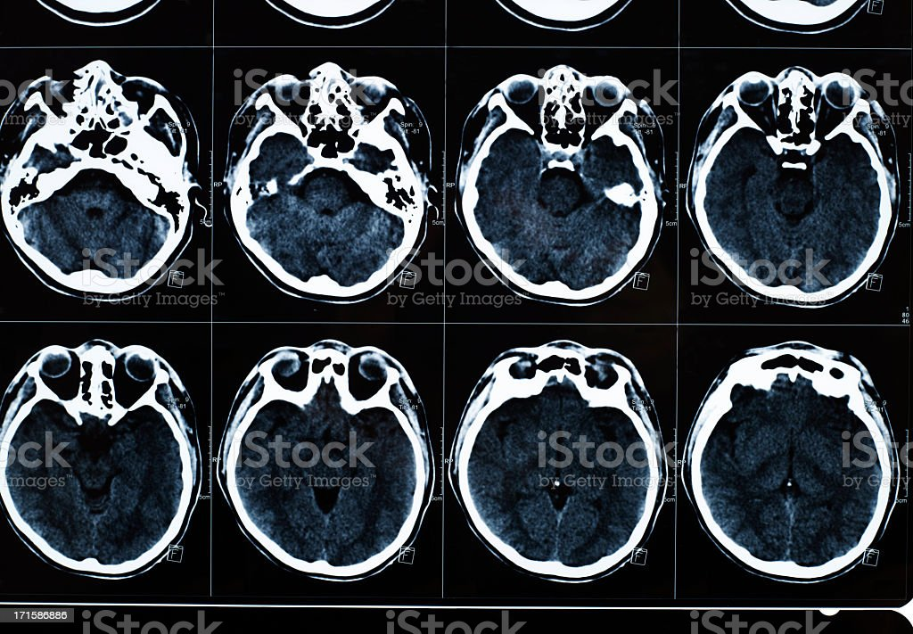 Human ct scan royalty-free stock photo