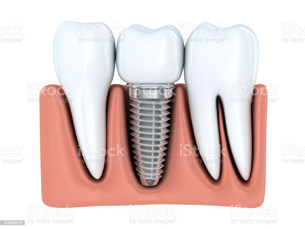 Human Dental implant stock photo
