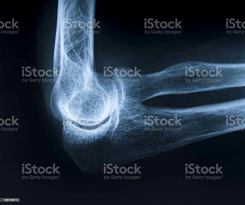 Human elbow bone stock photo
