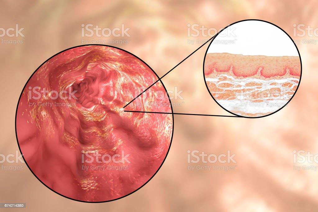 Human esophagous, illustration and light micrograph stock photo
