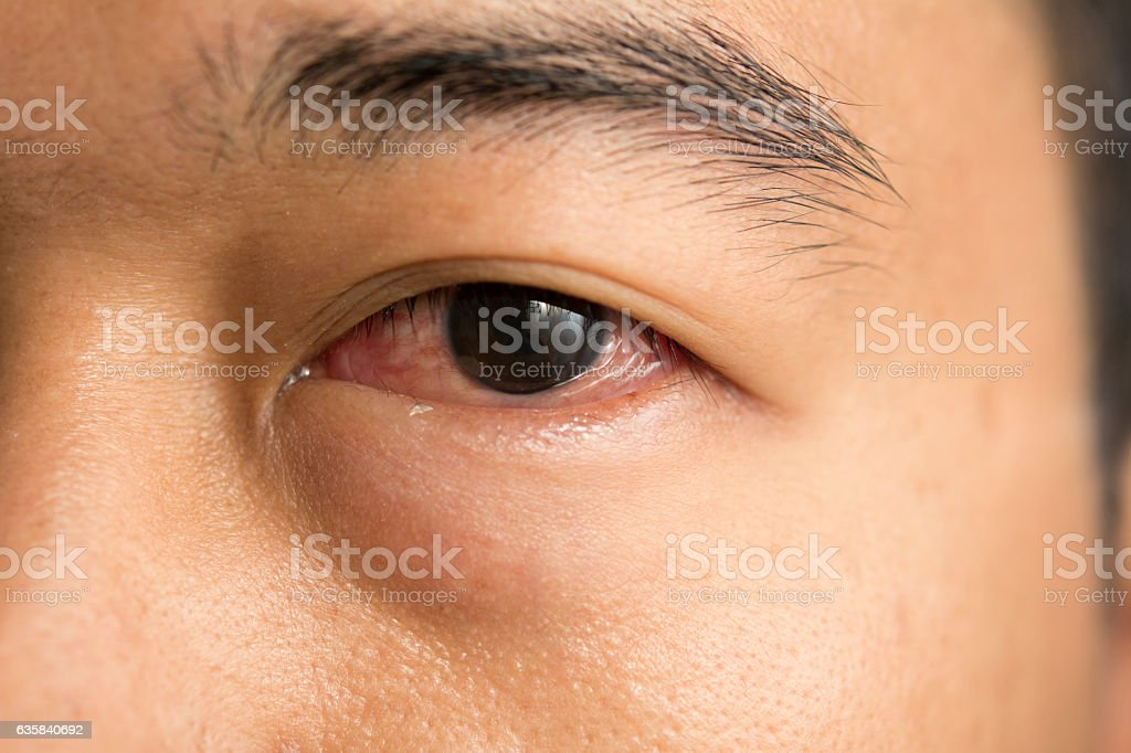 human eye with symptoms of conjunctivitis stock photo