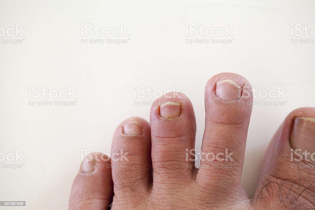 human foot and  ingrown nail, onychocryptosis royalty-free stock photo