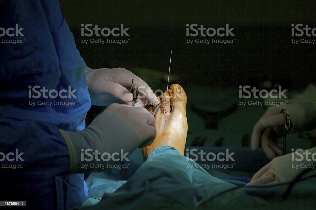 Human Foot Operation stock photo