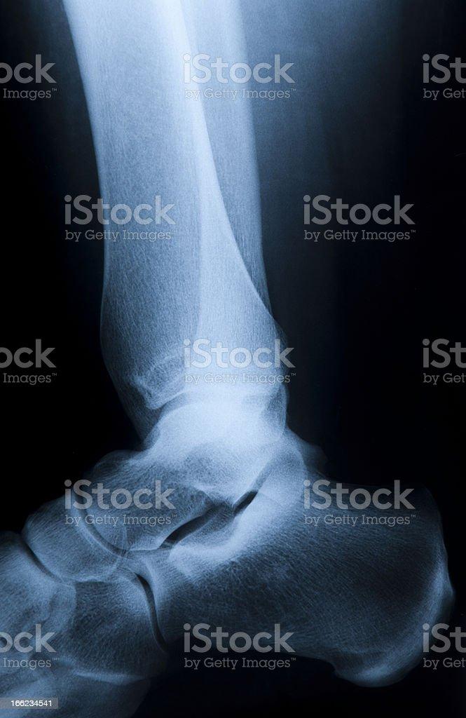 Human Foot royalty-free stock photo
