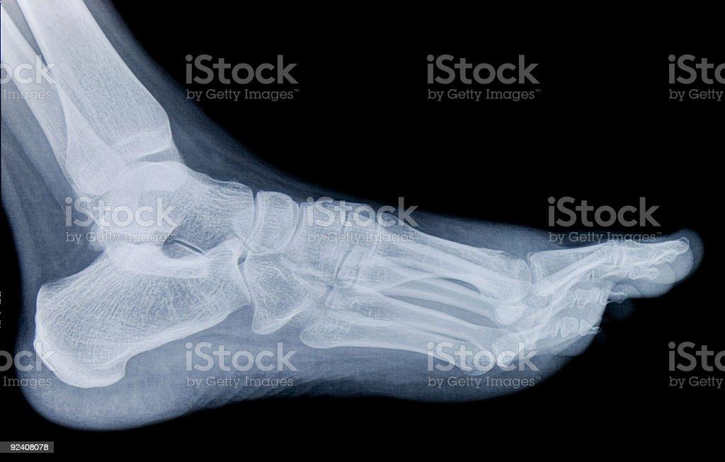 Human Foot X-Ray royalty-free stock photo