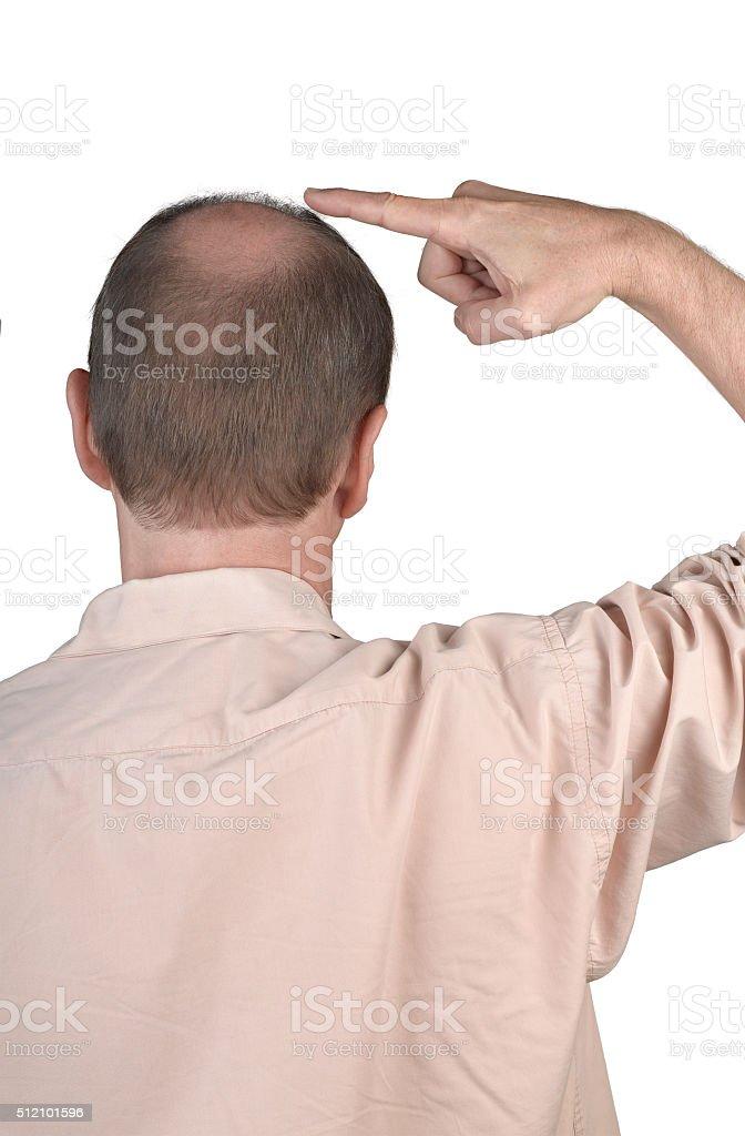 Human hair loss , adult man hand pointing his bald head stock photo