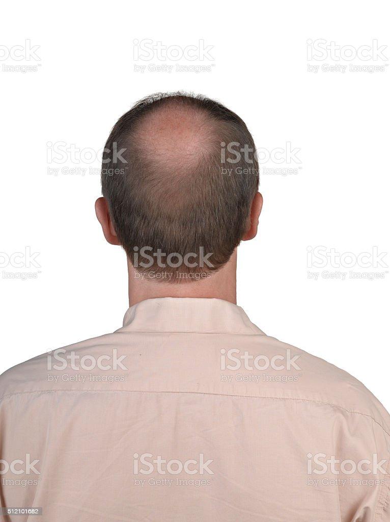 Human hair loss stock photo