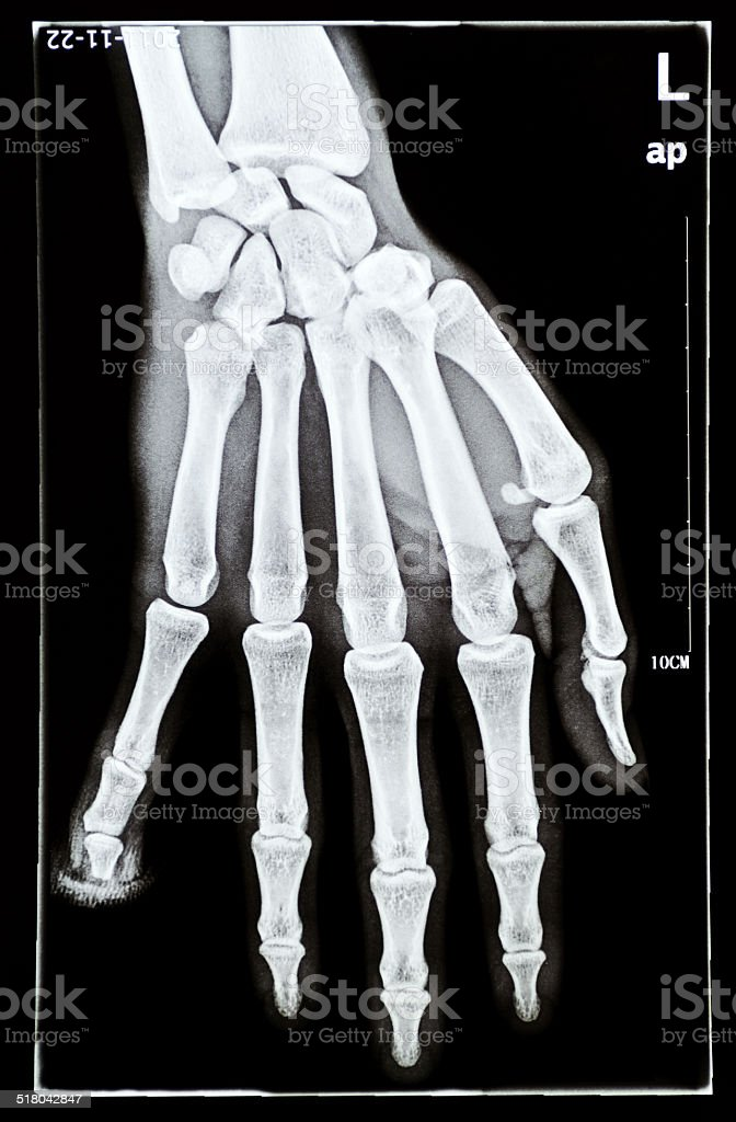 human hand x-ray stock photo
