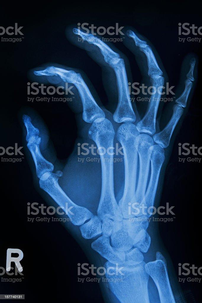 Human Handbone stock photo