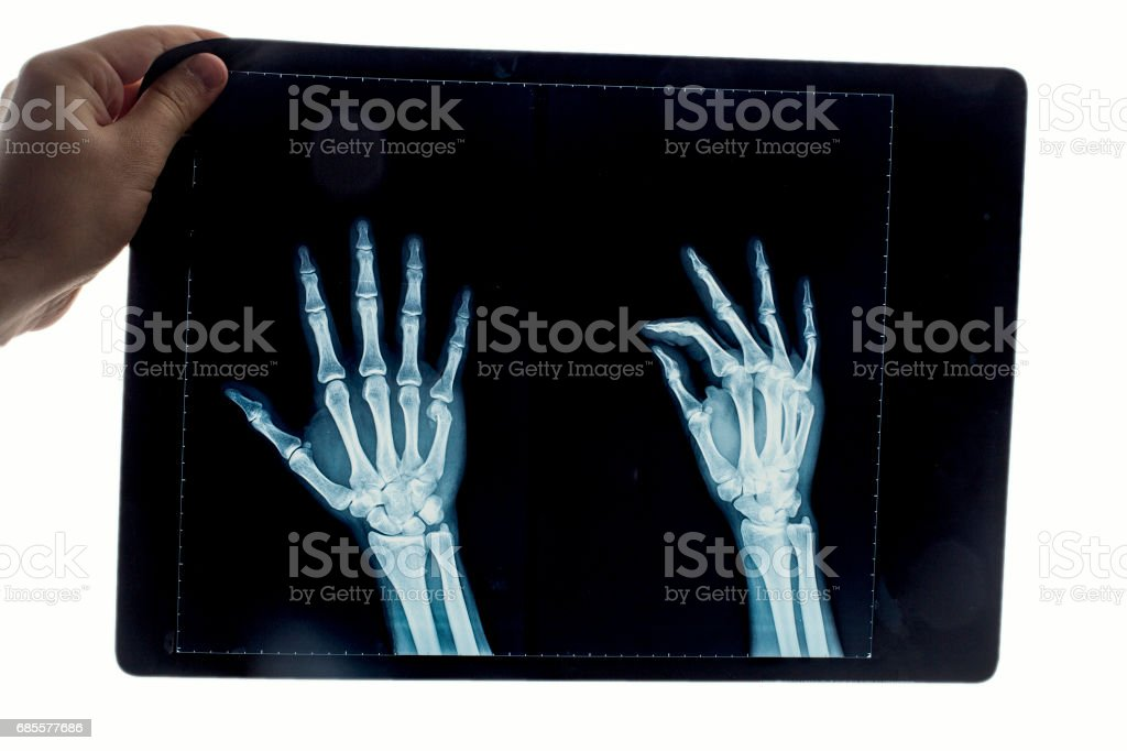 human hand's x-ray image stock photo