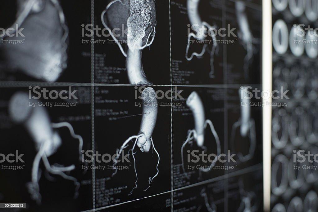 human heart and coronary artery  images stock photo