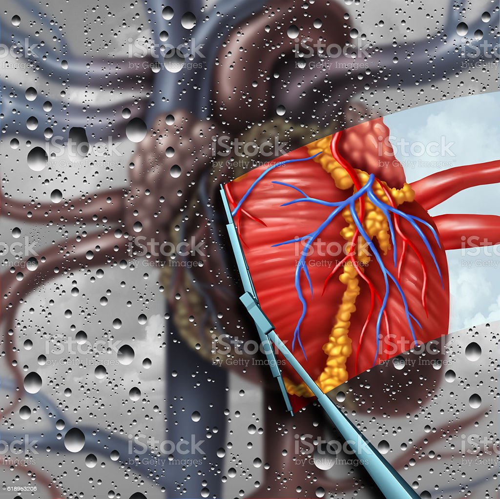 Human Heart Disease Therapy stock photo